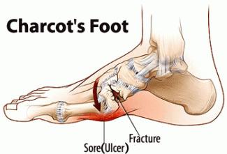 Le pied de Charcot