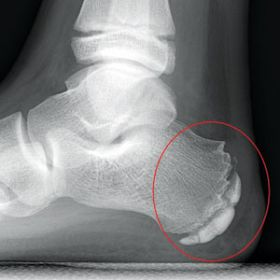 Heel pain (Sever's disease)