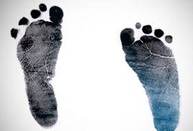Juvenile flat feet